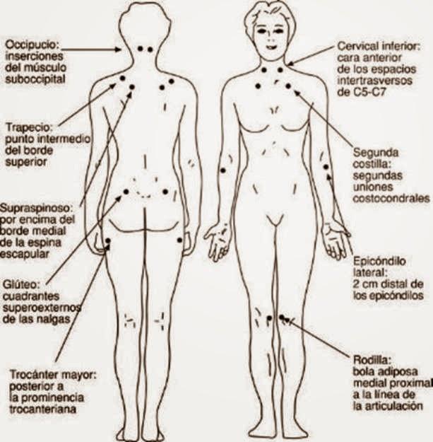 Como duele el cuello a la osteocondrosis